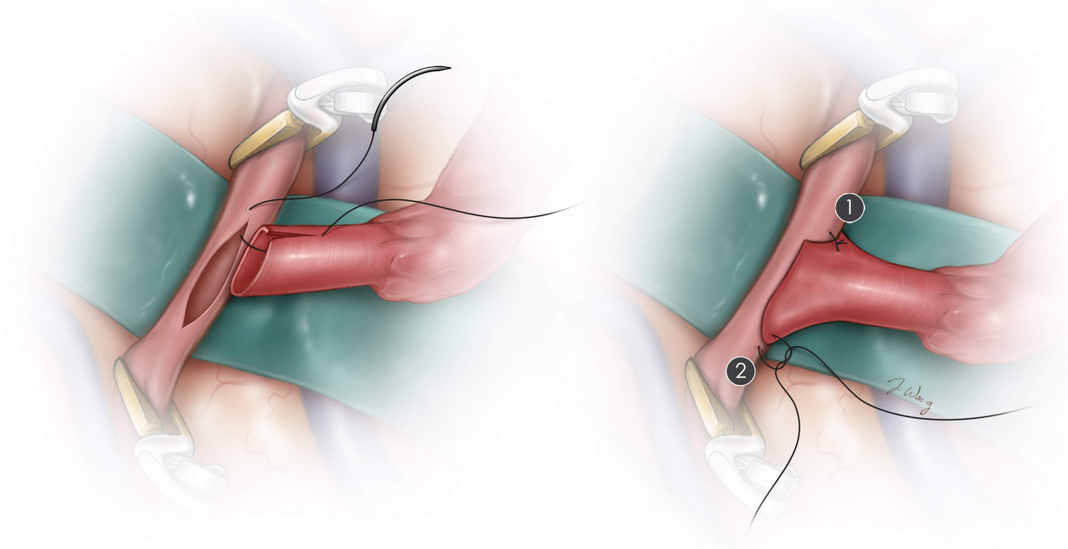 Figure 1. Cerebral bypass surgery involves joining the donor and recipient arteries together with sutures so that blood can bypass the blocked area and flow in adequate amounts to the brain.