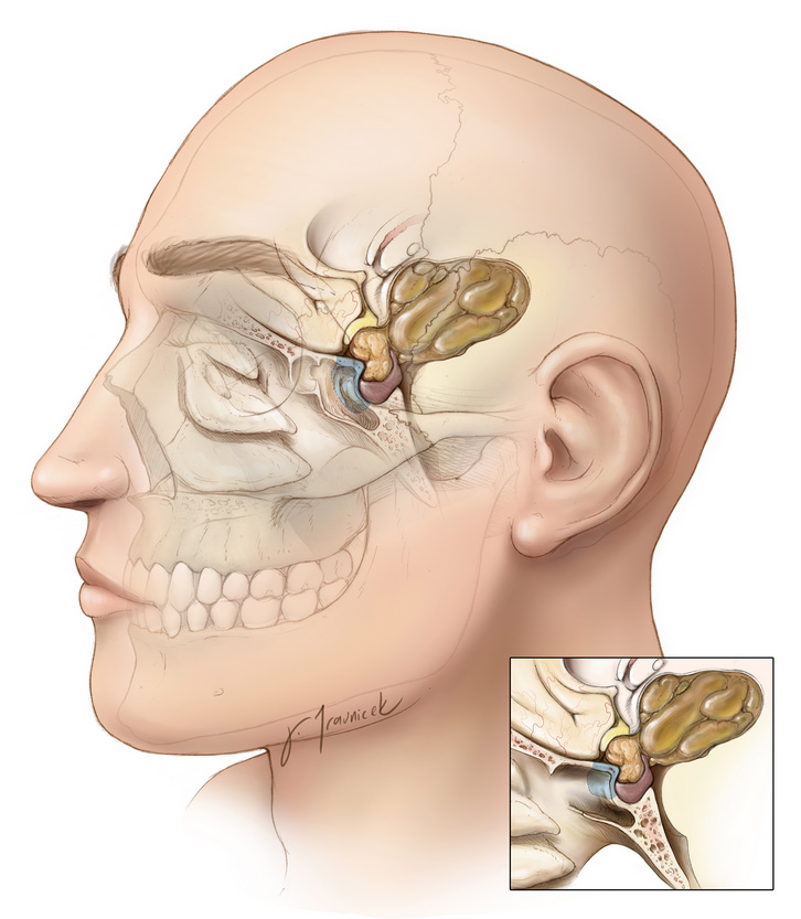 Figure 1: A craniopharyngioma (yellow brown) sitting at the base of the skull on top of the pituitary gland. A characteristic cystic component extends toward the middle of the brain.