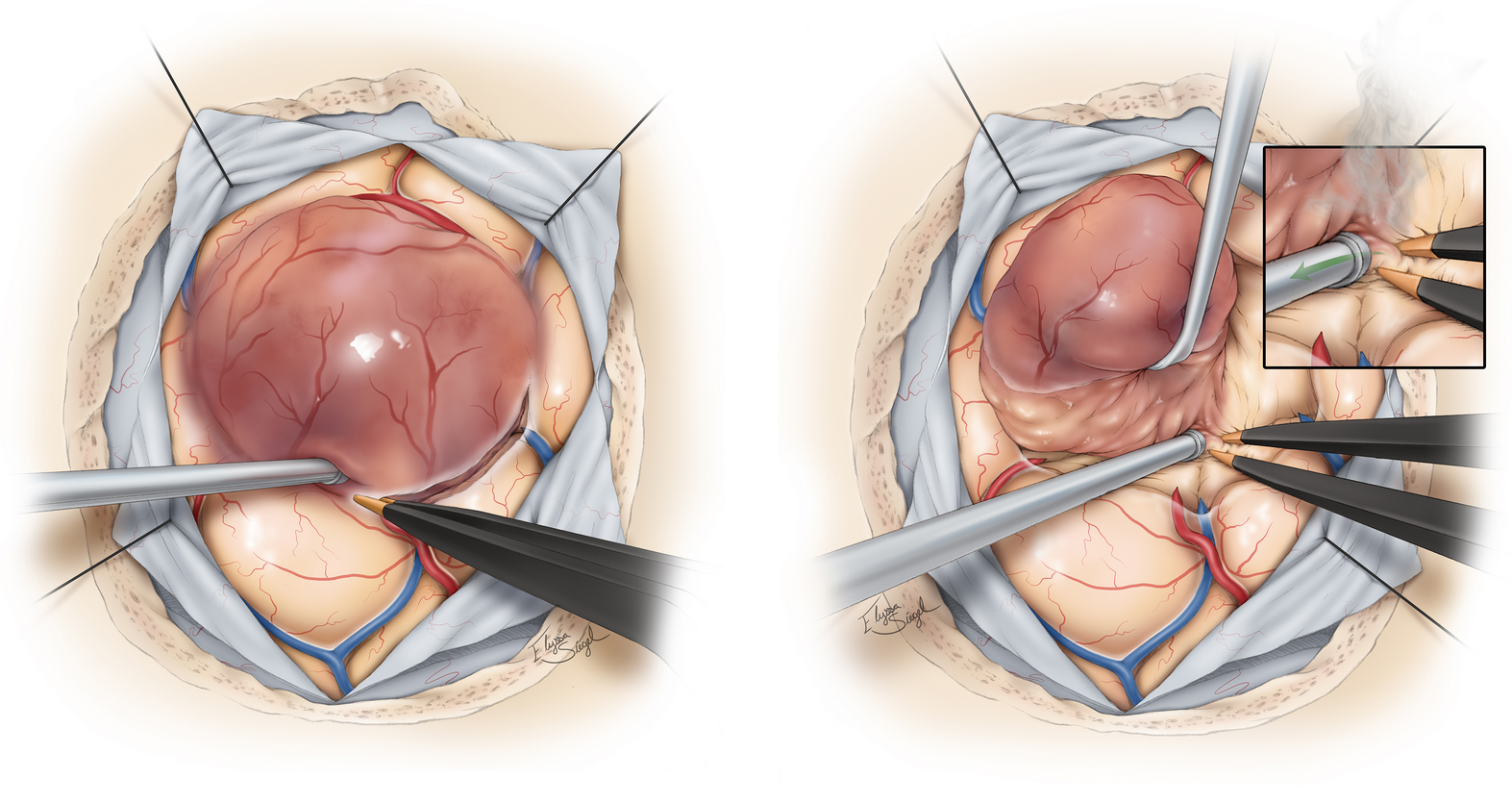 Figure 3. Surgical removal of a high-grade glioma. The tumor is carefully dissected from the surrounding tissues.