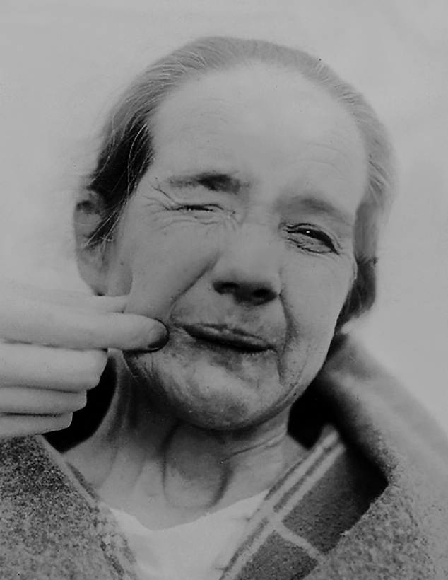 Figure 1. A patient with hemifacial spasm (circa 1920). The spasms are triggered by gently pinching the right side of the patient's face.