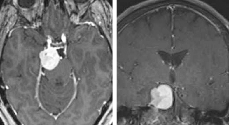 Figure 1. A petroclival meningioma (bright white) sitting at the base of the skull.