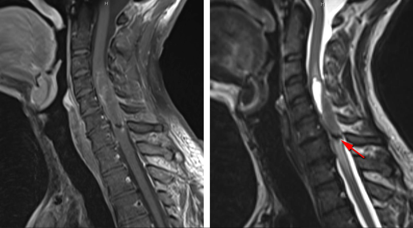 Figure 3. Spinal cord tumor with minimal enhancement (left) associated with a small bleed (red arrow, right).