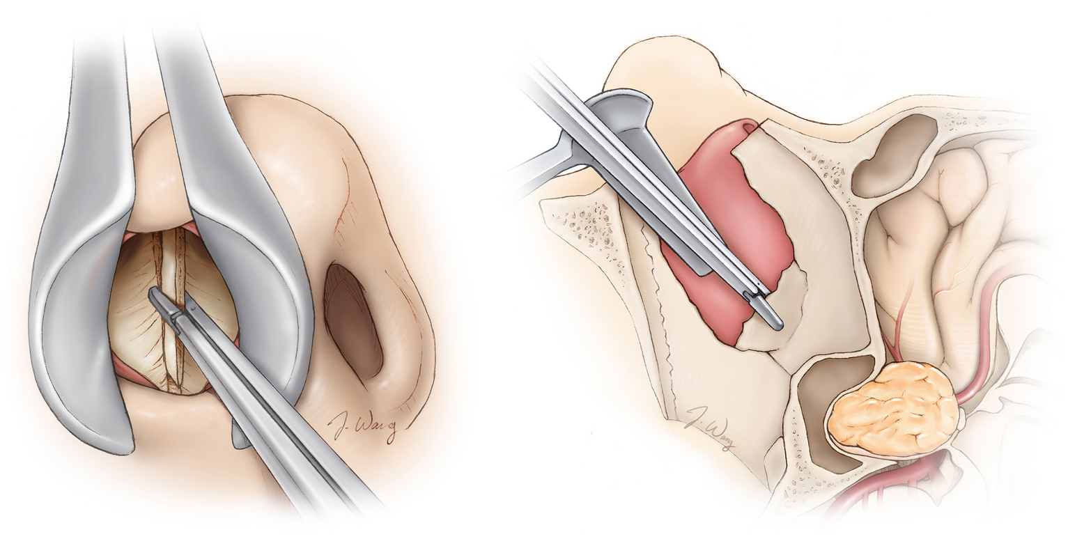 Figure 1. Removal of bone through the nasal passages (left) en route to a tumor at the base of the brain (right).