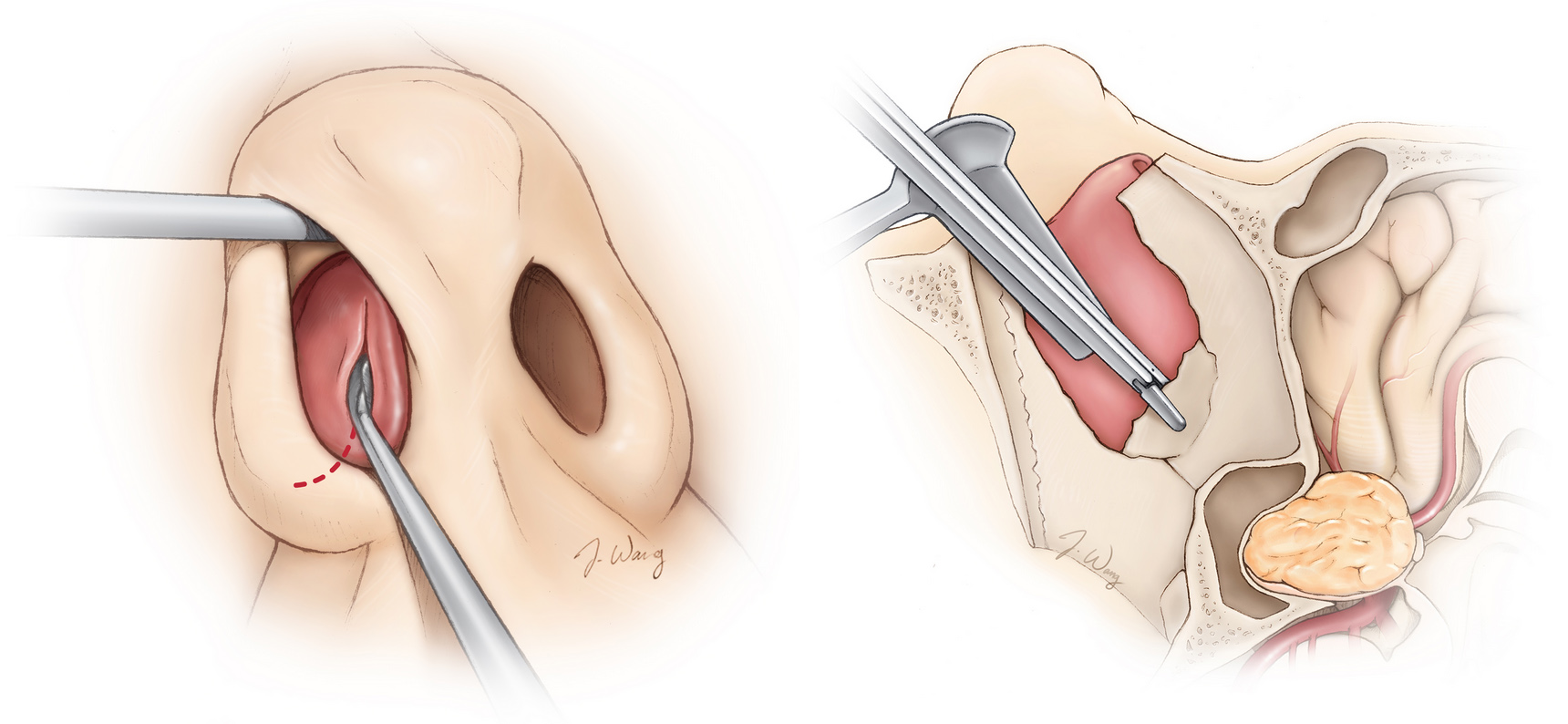 Figure 3. A small incision is made in the mucosa (left), and surgical instruments advance deeper into the nasal passages toward the sphenoid bone (right).